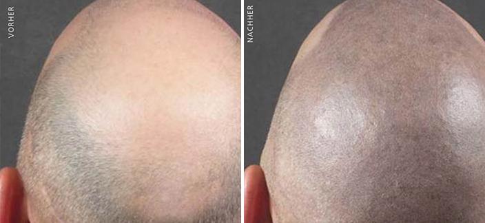 Behandlung-Tricho-Pigmentation